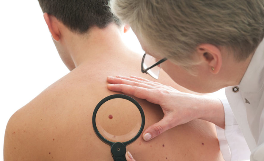 Skin cancers common, but melanoma rates falling among younger people