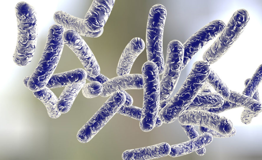 Legionnaires' disease regulation report released
